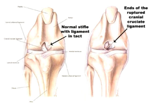 Cruciate Ligament Rupture